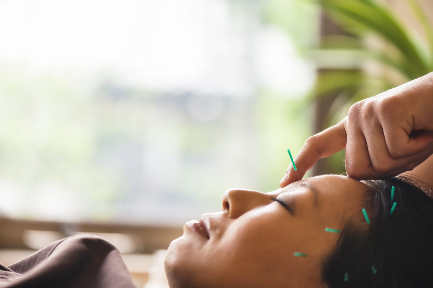 Young womanr receiving acupuncture treatment for migraine treatment